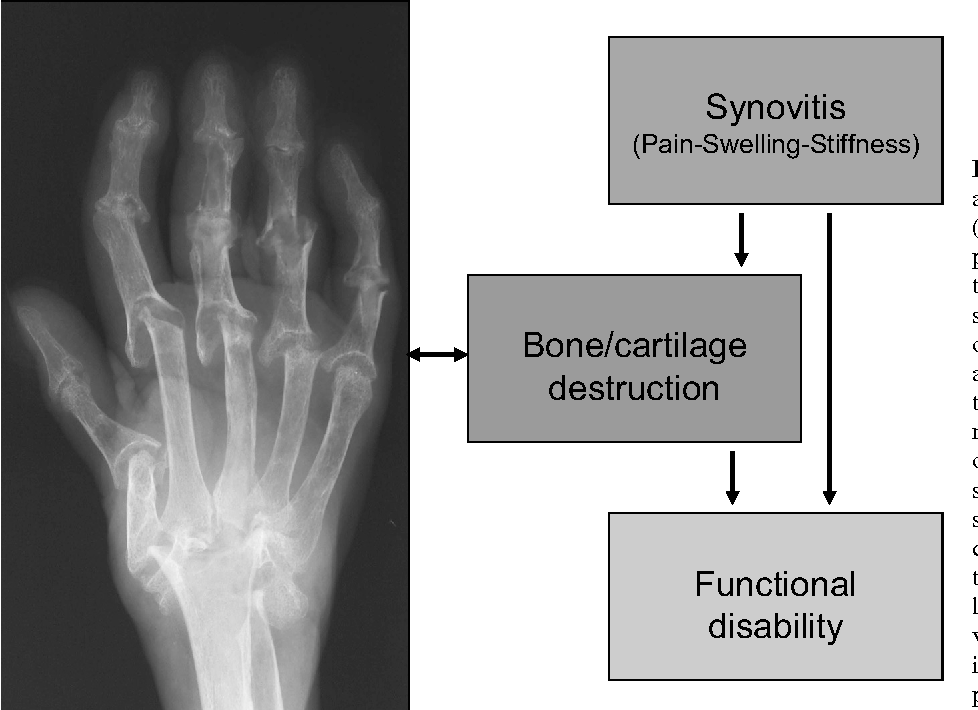 Rheumatoid arthritis: inflammation and bone loss - Semantic Scholar