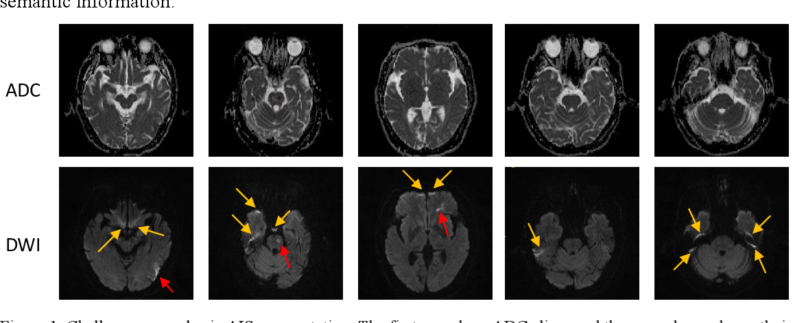 Figure 1 for Automatic acute ischemic stroke lesion segmentation using semi-supervised learning