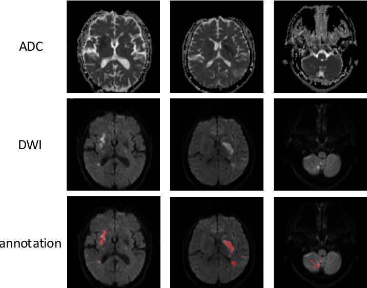 Figure 3 for Automatic acute ischemic stroke lesion segmentation using semi-supervised learning