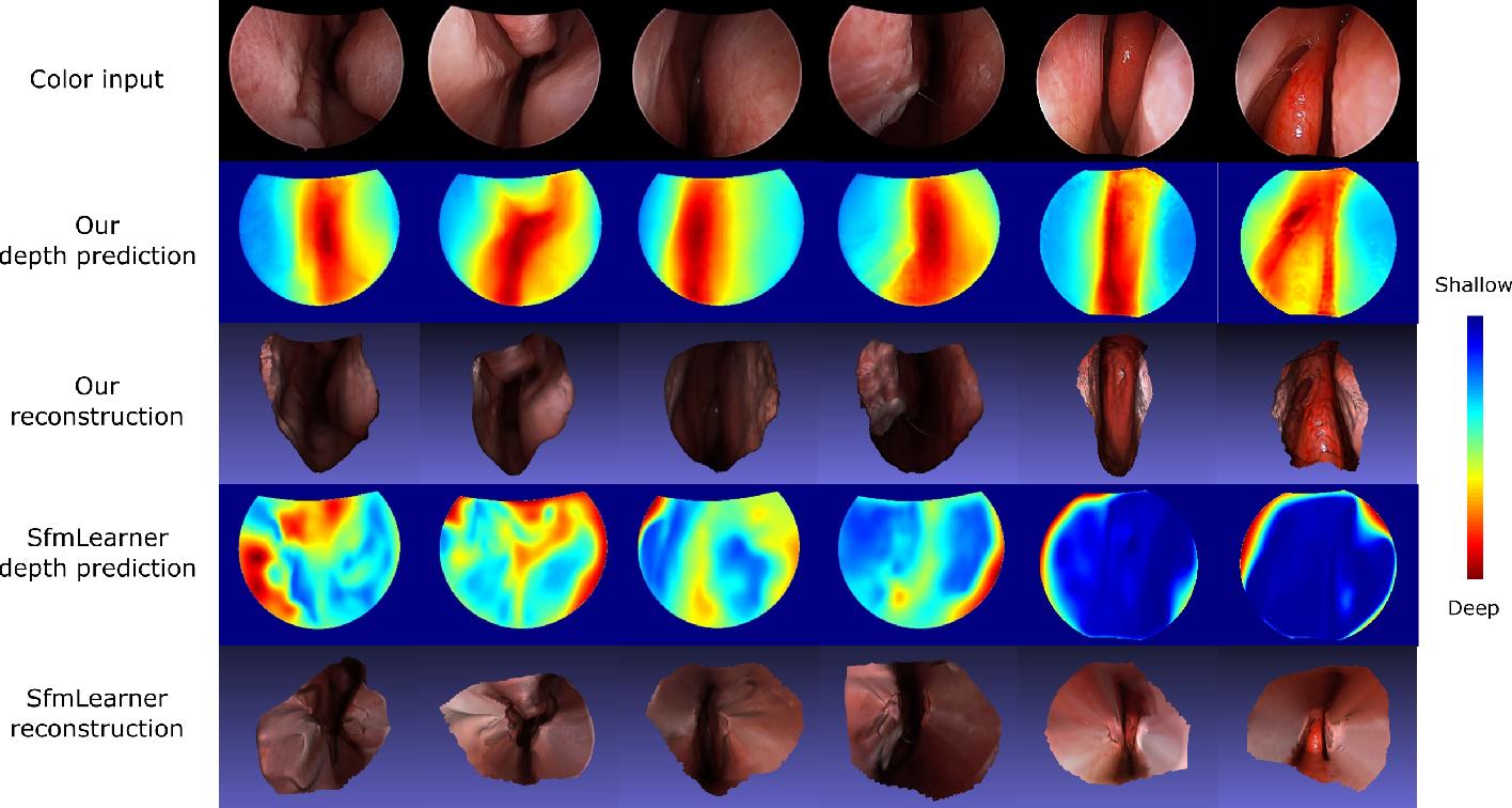 Figure 2 for Self-supervised Learning for Dense Depth Estimation in Monocular Endoscopy