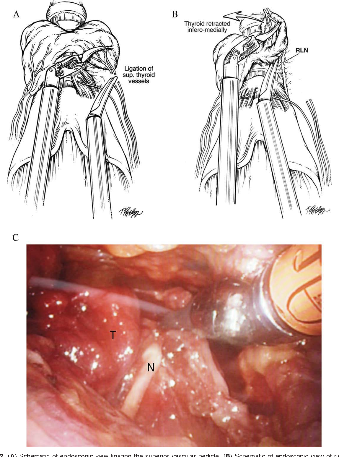 Transoral Robotic Assisted Thyroidectomy A Preclinical Feasibility