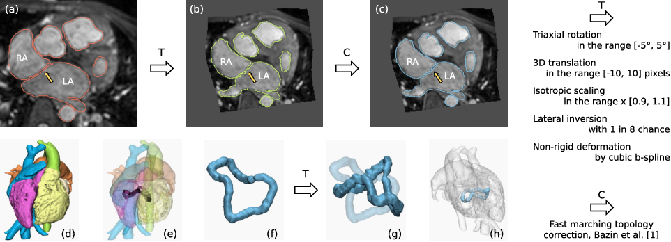 Figure 2 for Topology-preserving augmentation for CNN-based segmentation of congenital heart defects from 3D paediatric CMR