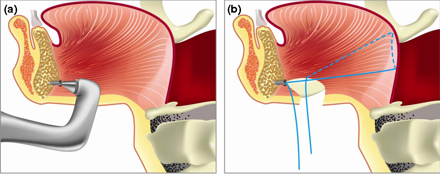 Transsubmental Tongue Base Suspension In Treating Patients With