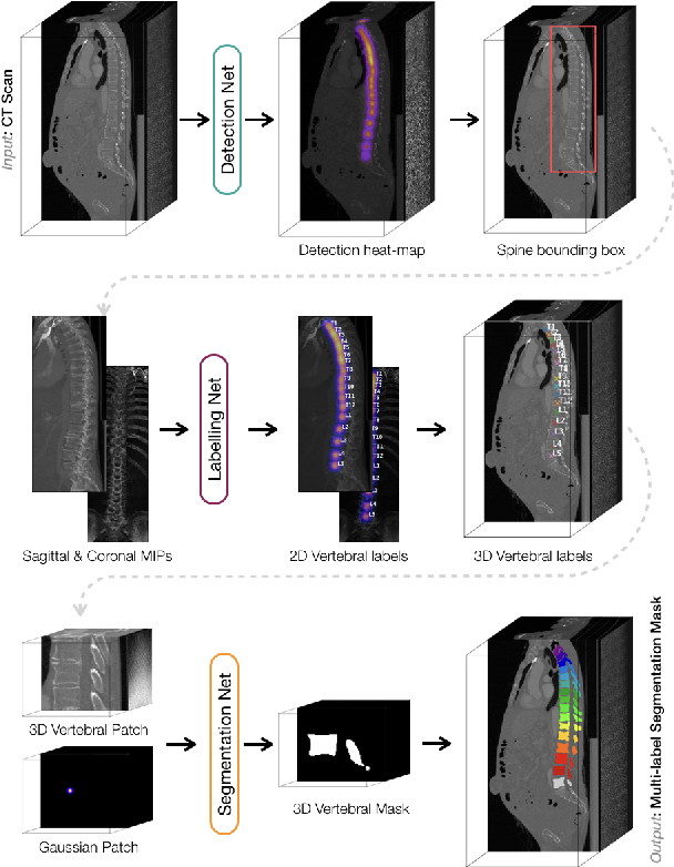 Figure 4 for VerSe: A Vertebrae Labelling and Segmentation Benchmark