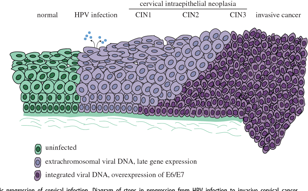 Figure 2 Oncogenic Progression Of Cervical Infection Diagram Steps In From HPV