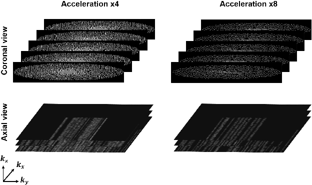 Figure 3 for Two-Stage Deep Learning for Accelerated 3D Time-of-Flight MRA without Matched Training Data
