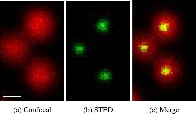Figure 1 for Learning to Become an Expert: Deep Networks Applied To Super-Resolution Microscopy
