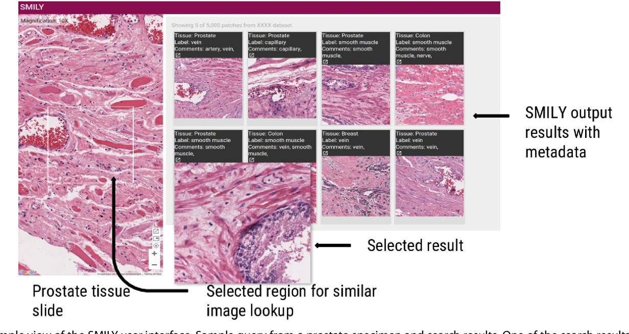 Figure 3 for Similar Image Search for Histopathology: SMILY