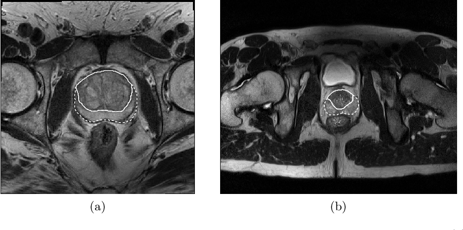 Figure 1 for CNN-based Prostate Zonal Segmentation on T2-weighted MR Images: A Cross-dataset Study