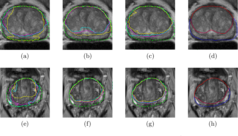 Figure 4 for CNN-based Prostate Zonal Segmentation on T2-weighted MR Images: A Cross-dataset Study
