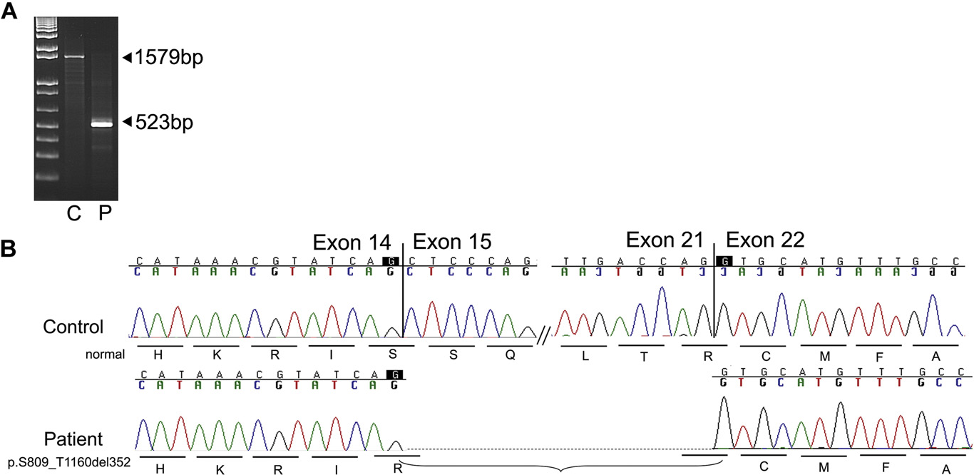 Fig. 2. Analysis of patient's cDNA. A: PCR products of exons 12–23 from control and patient's band (523 bp) was detected in patient's (P) cDNA indicating a deletion of ~1 kb in size. B: S leaving the protein in frame but lacking the polymerase catalytic domain.