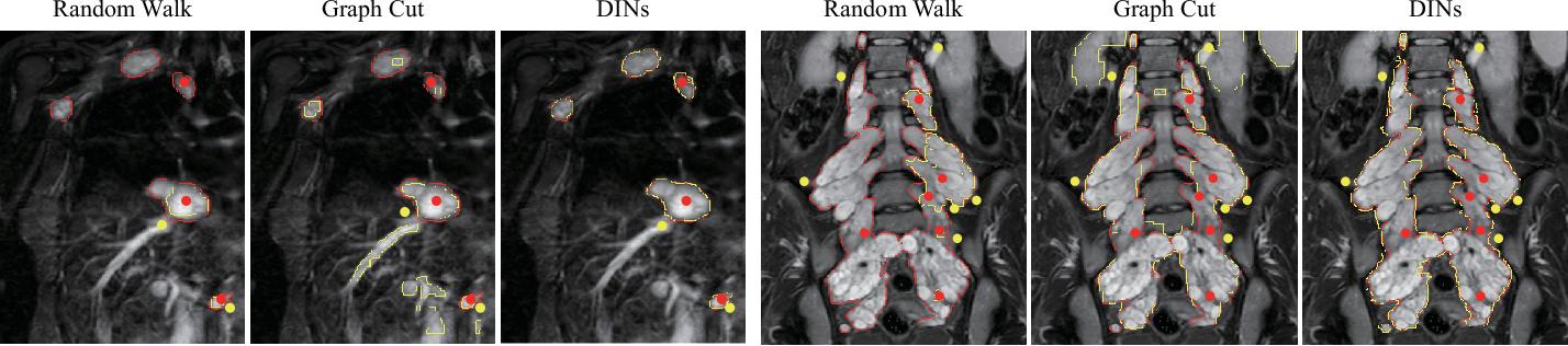 Figure 2 for DINs: Deep Interactive Networks for Neurofibroma Segmentation in Neurofibromatosis Type 1 on Whole-Body MRI