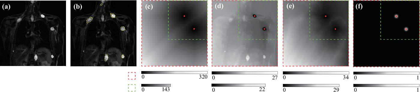 Figure 4 for DINs: Deep Interactive Networks for Neurofibroma Segmentation in Neurofibromatosis Type 1 on Whole-Body MRI