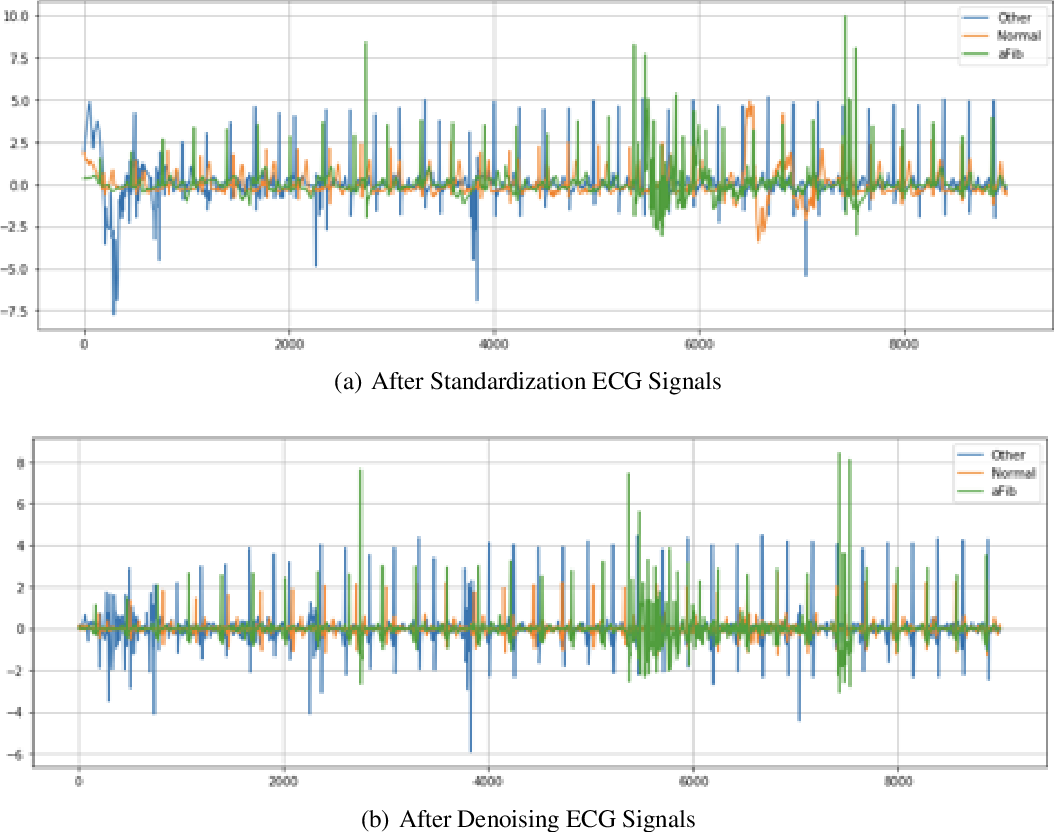 Figure 1 for Atrial Fibrillation Detection and ECG Classification based on CNN-BiLSTM