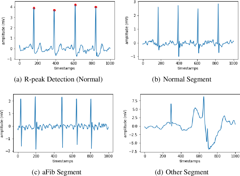 Figure 2 for Atrial Fibrillation Detection and ECG Classification based on CNN-BiLSTM