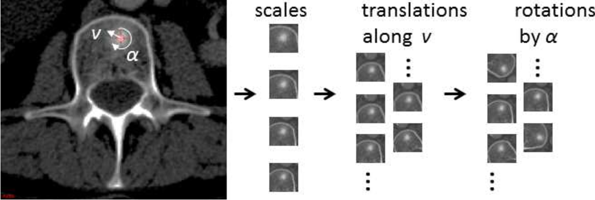 Figure 2 for Detection of Sclerotic Spine Metastases via Random Aggregation of Deep Convolutional Neural Network Classifications