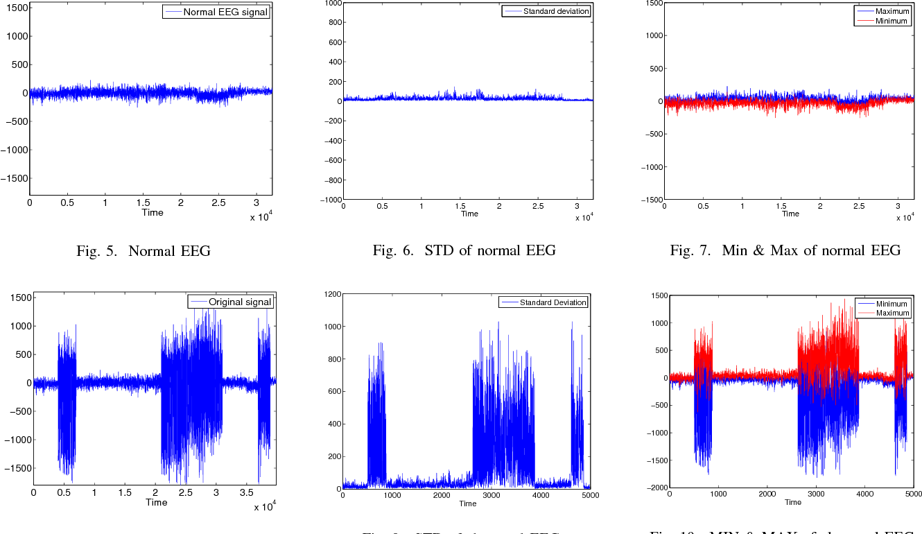 Figure 7 from Epileptic seizure detection from EEG signal