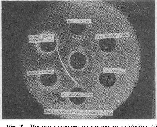 FIG. 5. RELATIVE DENSITY OF PRECIPITIN REACTIONS TO MATRIX SUBSTANCE A AND NORMAL URINARY NONDIALYZABLE SOLIDS TO RABBIT SERUM IMMUNE TO APATITE CALCULOUS MATRIX. Each peripheral well contains 0.5 mg of indicated test substance.