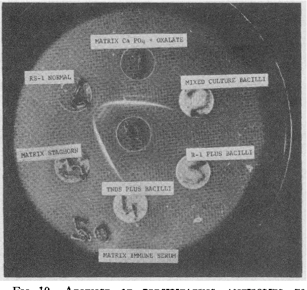 FIG. 10. ABSENCE OF PRECIPITATING ANTIBODIES TO BACILLI IN RABBIT SERA IMMUNE TO STAGHORN CALCULOUS