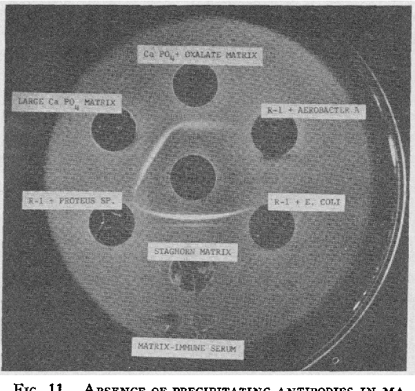 FIG. 11. ABSENCE OF PRECIPITATING ANTIBODIES IN MATRIX IMMUNE SERUM TO PURE CULTURES OF URINARY PATHOGENS CONTAINING R-1 SOLIDS OF NORMAL URINE.