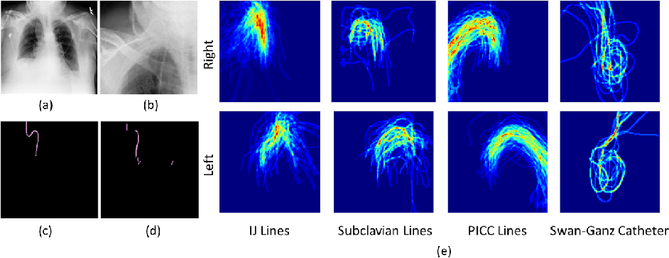 Figure 1 for Automated Detection and Type Classification of Central Venous Catheters in Chest X-Rays
