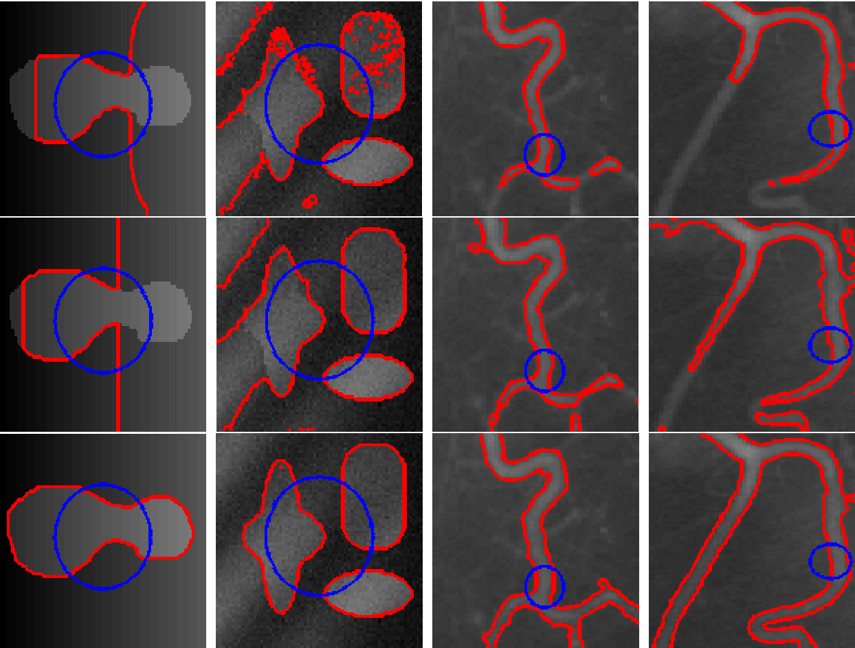 Figure 2 for A Local Active Contour Model for Image Segmentation with Intensity Inhomogeneity