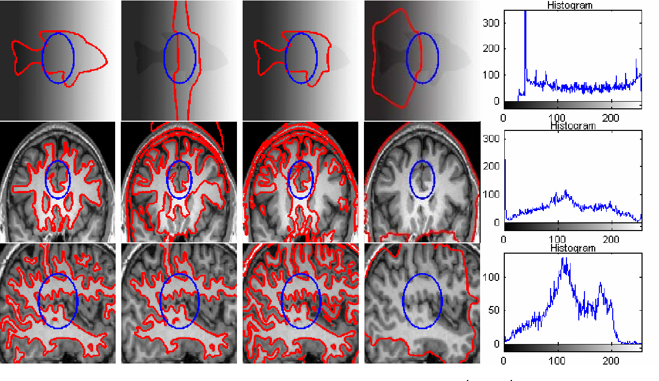 Figure 3 for A Local Active Contour Model for Image Segmentation with Intensity Inhomogeneity