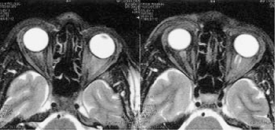 La névrite péri-optique : complication méconnue de la tuberculose ...