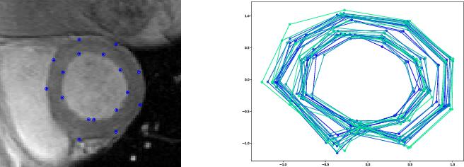 Figure 4 for Bridge Simulation and Metric Estimation on Landmark Manifolds