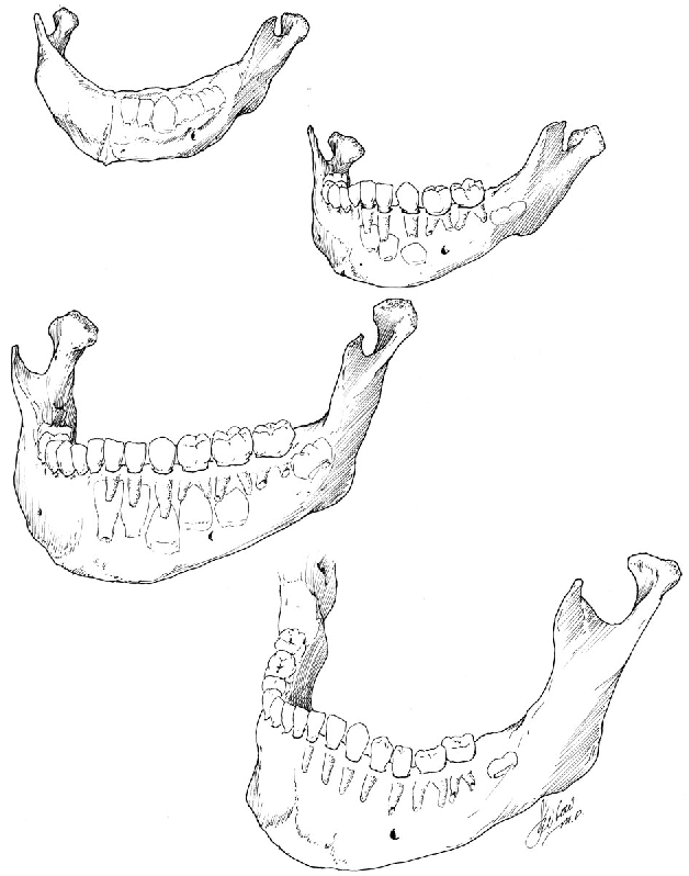 Figure 1 From Cme The Pediatric Mandible I A Primer On Growth