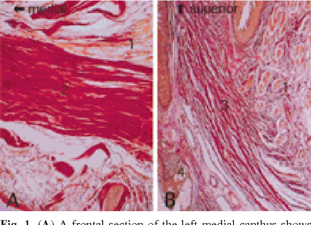 An Anatomical Study of the Medial Canthus Using a Three-Dimensional ...