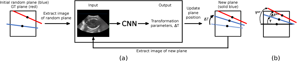 Figure 1 for Standard Plane Detection in 3D Fetal Ultrasound Using an Iterative Transformation Network