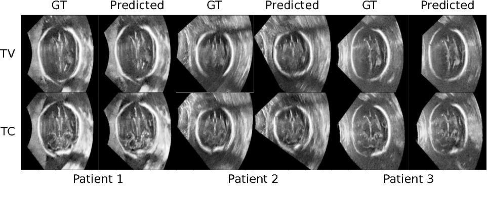 Figure 4 for Standard Plane Detection in 3D Fetal Ultrasound Using an Iterative Transformation Network