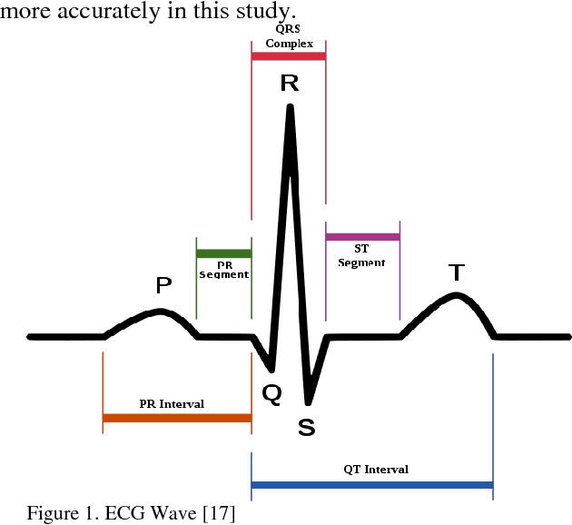 Wavelet-based analysis method for heart rate detection of ECG signal