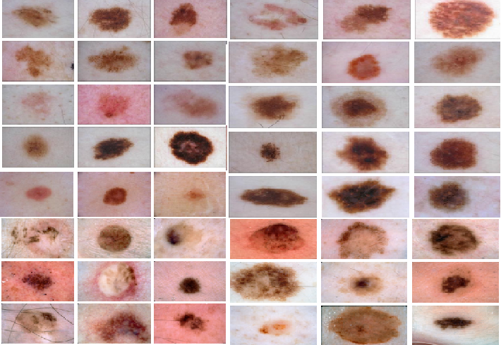 Figure 3 for Discovery Radiomics via Deep Multi-Column Radiomic Sequencers for Skin Cancer Detection