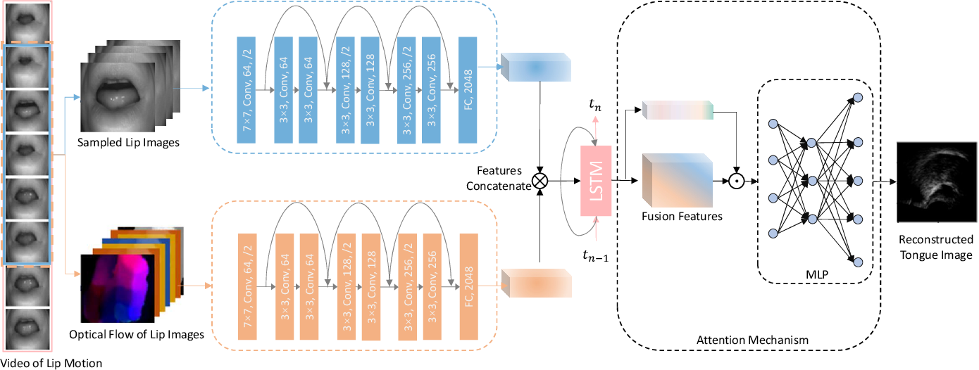 Figure 1 for Improving Ultrasound Tongue Image Reconstruction from Lip Images Using Self-supervised Learning and Attention Mechanism