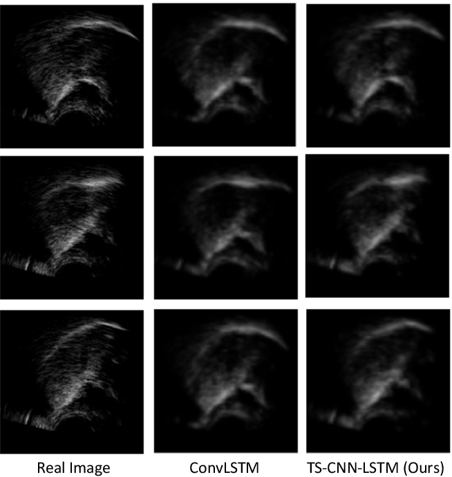 Figure 4 for Improving Ultrasound Tongue Image Reconstruction from Lip Images Using Self-supervised Learning and Attention Mechanism