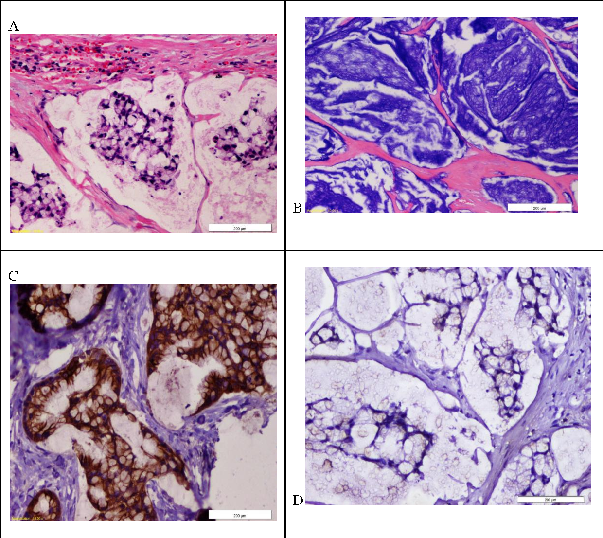Figure 2 From Primary Mucinous Carcinoma Of Cowper Gland A Case