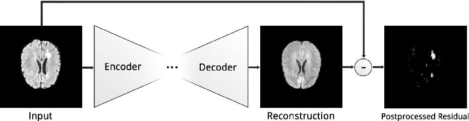 Figure 1 for Deep Autoencoding Models for Unsupervised Anomaly Segmentation in Brain MR Images