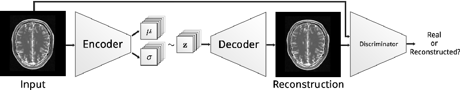 Figure 3 for Deep Autoencoding Models for Unsupervised Anomaly Segmentation in Brain MR Images