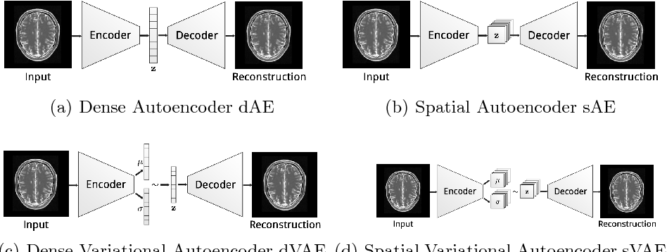 Figure 4 for Deep Autoencoding Models for Unsupervised Anomaly Segmentation in Brain MR Images