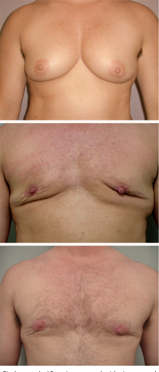 Fig. 9. Fischer grade 2B patient treated with circumareolar incision needing revisions shown (above) preoperatively, (center) postoperatively, and (below) after revision using direct excision.
