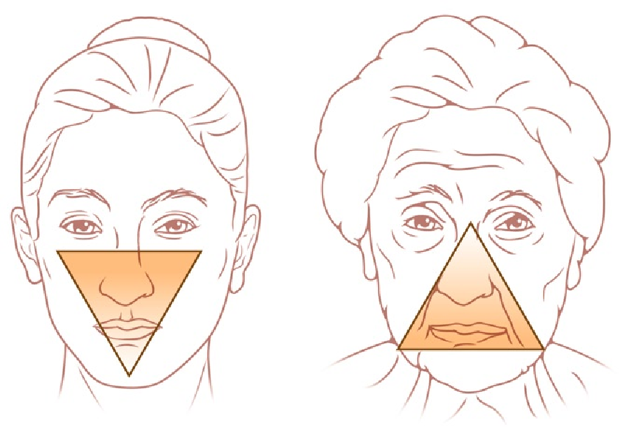 Surgical Anatomy of the Forehead , Eyelids , and Midface for the ...