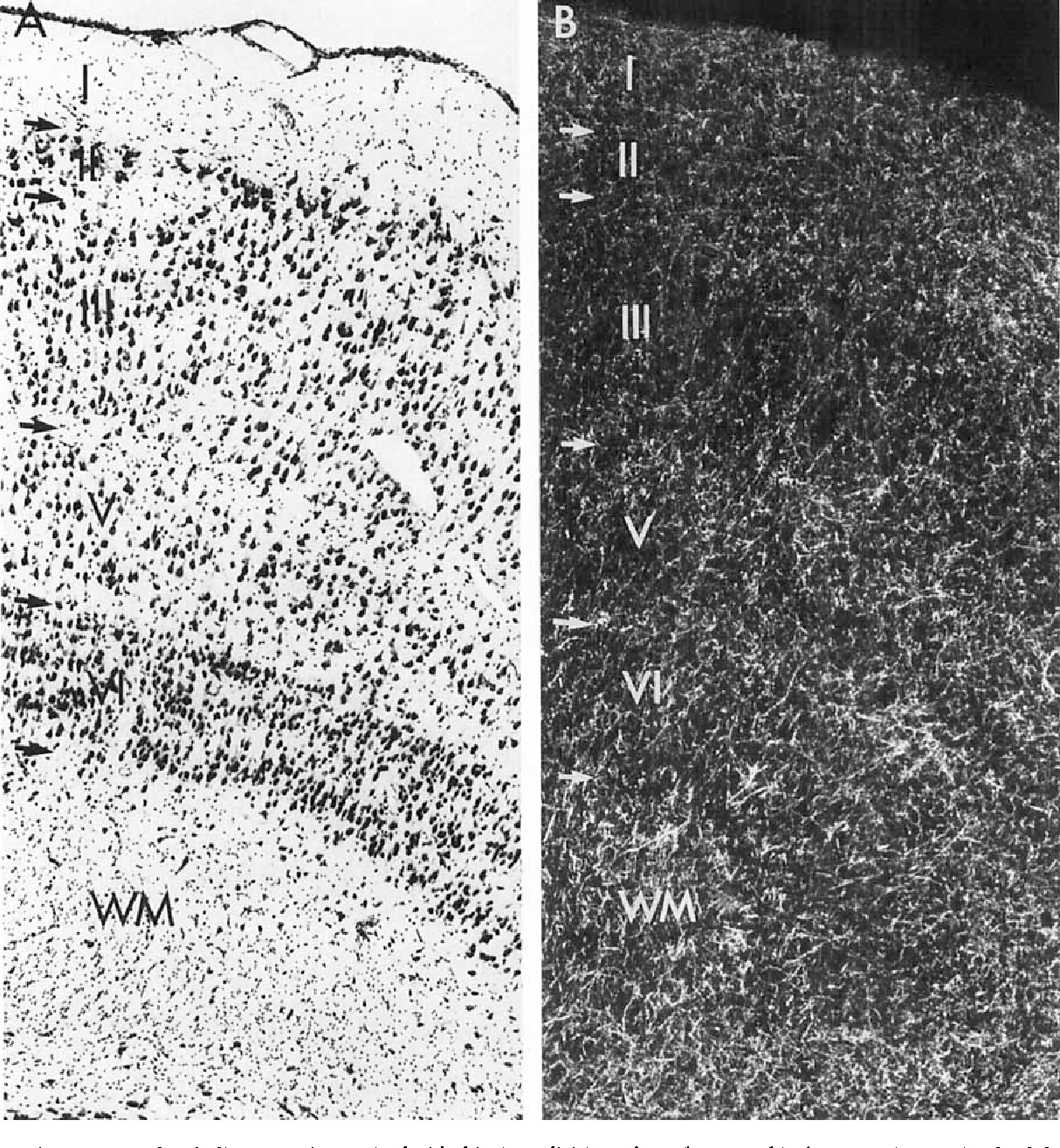 Fig. 8. Photomicrographs of adjacent sections stained with thionin (A) and ChAT immunohistochemistry (B) demonstrate, at higher magnification, the laminar organization of ChAT staining in the caudal division of monkey entorhinal cortex. Arrows in the left margin demarcate the different layers in the entorhinal field. For scale, see scale bar in Figure 6.