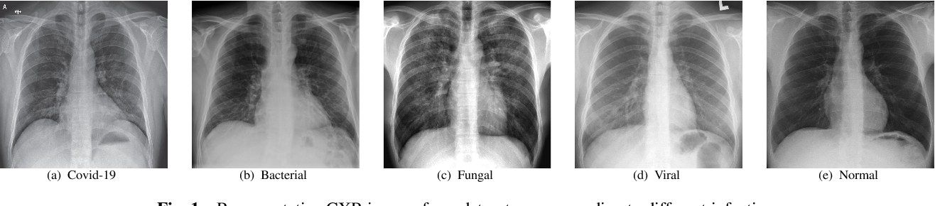 Figure 1 for Covid-19 Detection from Chest X-ray and Patient Metadata using Graph Convolutional Neural Networks