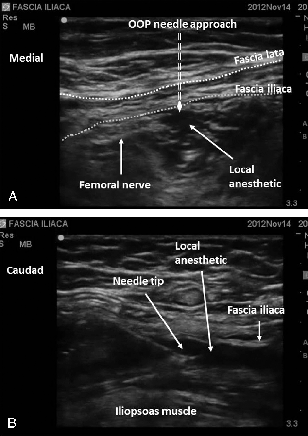 The efficacy of ultrasound-guided fascia iliaca block in hip surgery ...