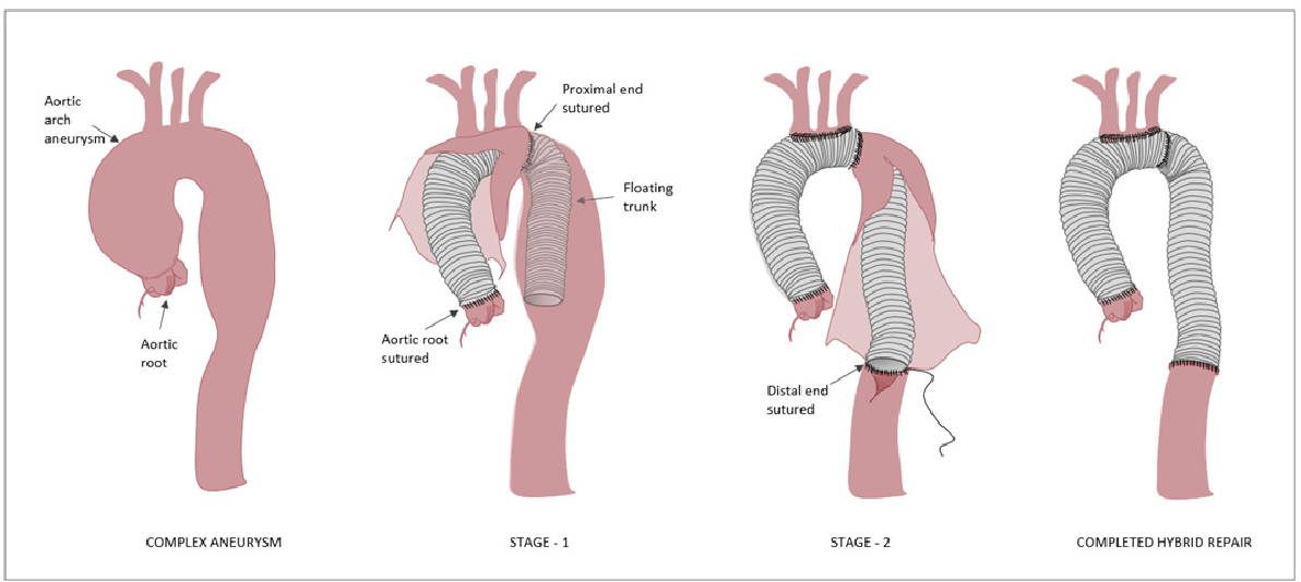 Importance of stent-graft design for aortic arch aneurysm repair ...