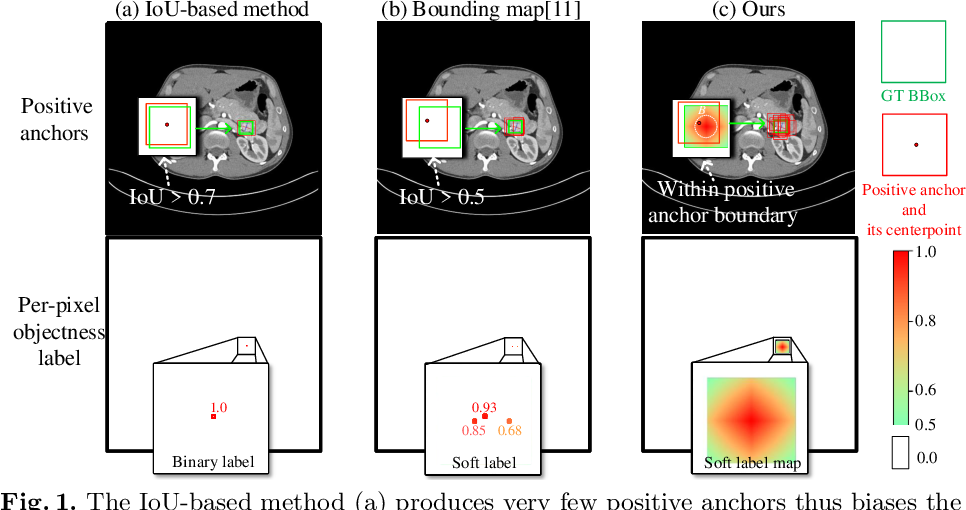 Figure 1 for Conditional Training with Bounding Map for Universal Lesion Detection