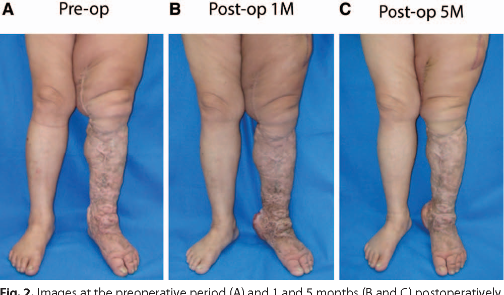 Simultaneous Bilateral Submental Lymph Node Flaps For Lower Limb