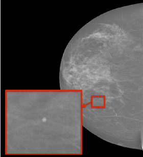 Figure 1 for Automated Detection of Individual Micro-calcifications from Mammograms using a Multi-stage Cascade Approach